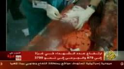 شاهد ماذا تفعل أسلحة  الجيش الاسرائيلى المحرمة دوليا فى اجسام اطفال غزة