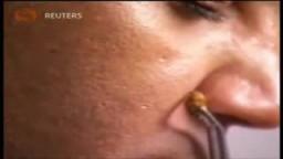 دكتور فلسطينى يبتكر طريقة للعلاج باستخدام سم النحل