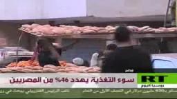 سوء التغذية يهدد 46% من المصريين