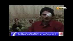 أحد المصابين فى ثورة 25يناير الذى تعرض لرصاص مطاطى بعينة على يد الضابط وائل الكومى