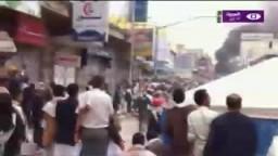 قنص شاب في رأسه في مظاهرات يوم الغضب في صنعاء