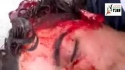 شهداء سوريا الأبرار وابتسامات البشرى