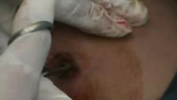 إخراج رصاصة من أحد المصابين فى اليمن