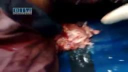 يرجى المشاهدة لأكبر من 18 عاما وممنوع لأصحاب القلوب الضعيفة : جرائم بشار الأسد فى الشعب السورى