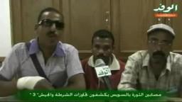مصابين الثورة بالسويس يكشفون تجاوزات الشرطة