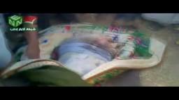 يرجى المشاهدة للكبار وممنوع للقلوب الضعيفة : الشهيد محمد عبد الحميد من جبل الزاوية , استشهد من تعذيب ورصاص قوات الاسد