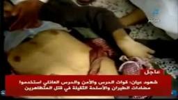 يرجى المشاهدة للكبار وممنوع للقلوب الضعيفة : اليمن- شهداء ومصابي مسيرة التصعيد السلمية بالعاصمة صنعاء