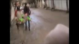 طفلة سورية مصابة في رأسها من قبل قوات السفاح بشار الاسد