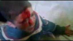 شام حمص القصير مؤثر جداً طفل مصاب نتيجة القصف