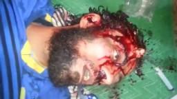 مذبحة المنصة - خروج الروح من أحد الشهداء+18