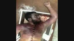 آثار تعذيب وحشية على جثث مذبحة سجن أبو زعبل