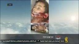 من أبشع ما لم تشاهده من ضحايا سيناء !