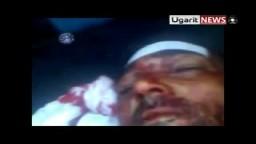 سوريا- أحد شهداء مجازر أبطع درعا