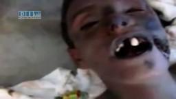 للكبار فقط سوريا : الطفل ثامر شهيد تعذيب جنود الاسد