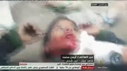 لحظة إستشهاد طفل عمره 14عام بعين شمس